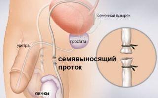 При каких условиях может быть обратима вазэктомия ?