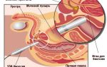 Методы диагностики рака предстательной железы