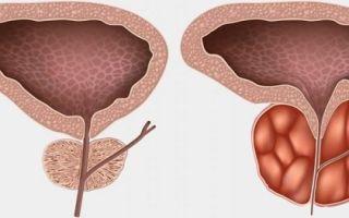 Первые симптомы простатита у мужчин и методы его лечения
