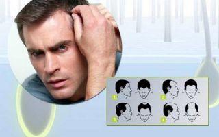 Что нужно делать, если ужасно выпадают волосы