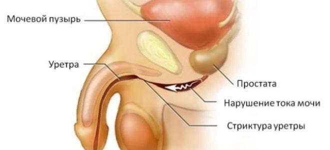Первые симптомы и методы лечения уретрита у мужчин
