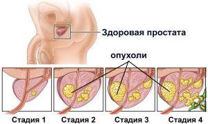 Лечение доброкачественной гиперплазии предстательной железы — дгпж 2 степени