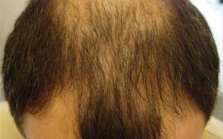 Лечение залысин и выпадения волос на лбу у мужчин