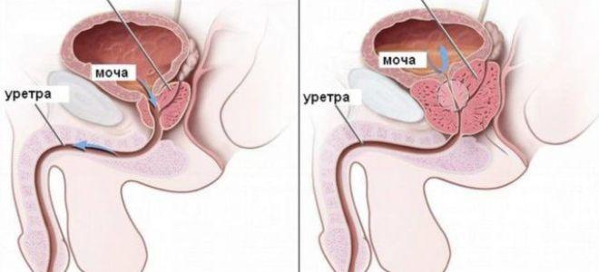 Воспаление простаты и его симптомы