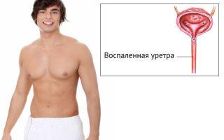 В чем причины появления крови из уретры у мужчин