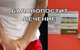 Баланопостит у мужчин: причины, симптомы, лечение
