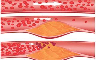Какой уровень холестерина в мужском организме считается нормальным? — расчетная таблица