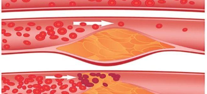 Какой уровень холестерина в мужском организме считается нормальным?