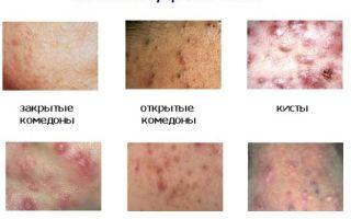 Прыщи на спине у мужчин: причины возникновения и способы лечения