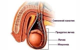 Лечение воспаления семенного канатика и симптомы заболевания