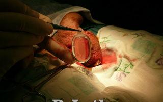 Как имплантируется протез яичка?