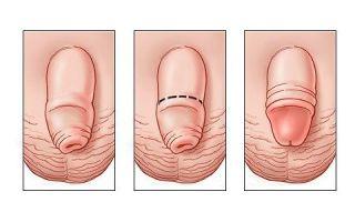 Жжение головки пениса у мужчин: причины и лечение