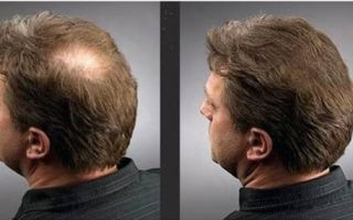 Как проводят наращивание волос для мужчин
