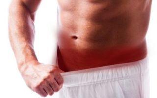 Резь при мочеиспускании у мужчин — признак инфекционного заболевания