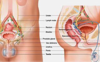 Причины и симптомы воспаления лимфоузлов в паху у мужчин