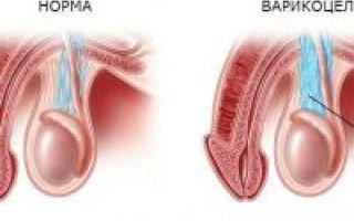 Проведение пробы вальсальвы при варикоцеле