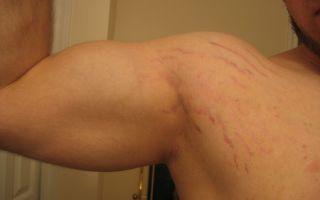 Как устранить растяжки на руках у мужчин