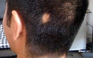 Методы лечения очаговой алопеции у мужчин