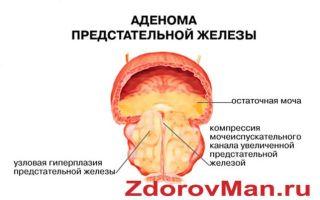 Лечение аденомы простаты народными средствами