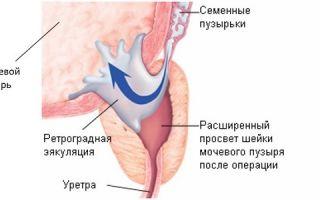 Что служит причиной возникновения ретроградной эякуляции?