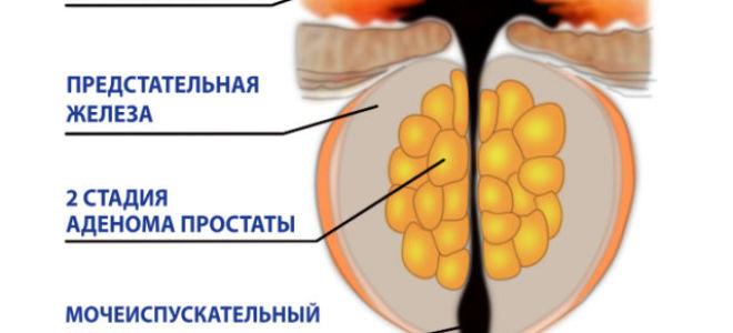 Консервативное (медикаментозное) лечение простатита
