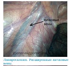 Реальное фото варикоцеле