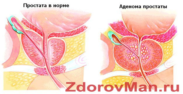 Лечение простатита без операции