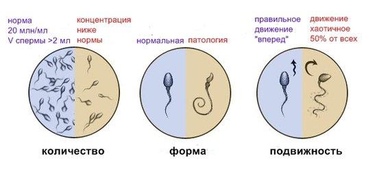 виды спермотозоидов