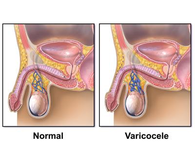 Заболевание яичек у мужчин варикоцеле