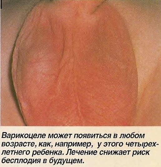 Варикоцеле машонки ребенка