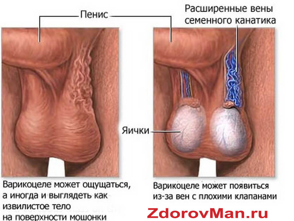 Вид варикоцере