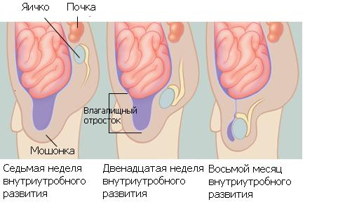 паталогия мешочка яичников