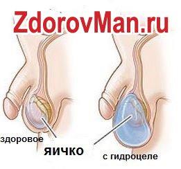 Гидроцеле - она же водянка у мужчины
