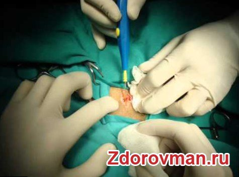 Операция Мармара с использованием минидоступа при варикоцеле