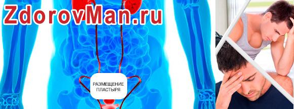 urologicheskiy-plastyr