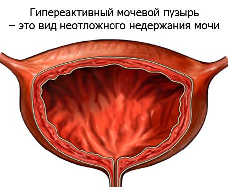 мочевой пузырь в разрезе схема