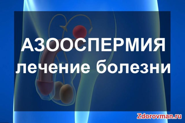 Азооспермия у мужчин причины и лечение