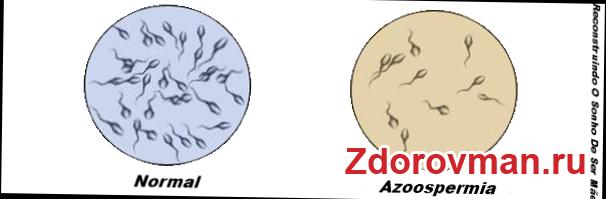 разница в колличестве сперматозоидов при азооспермии