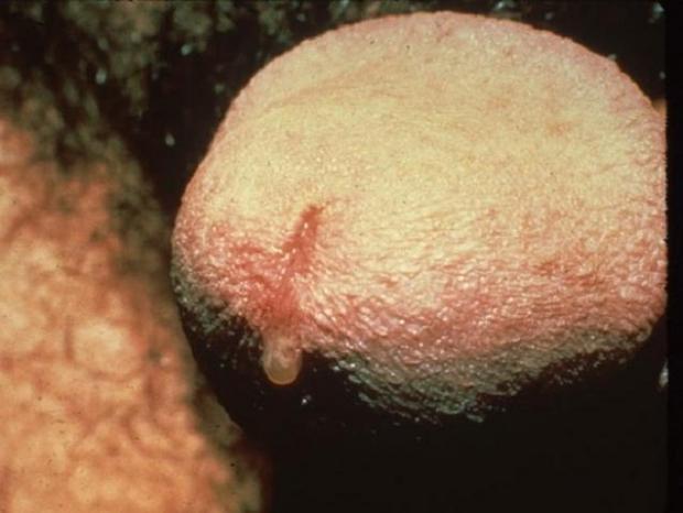 Как определить микоплазмоз и как его лечить