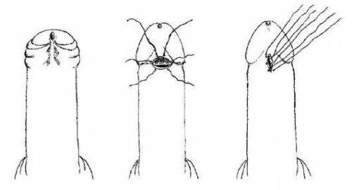 Удлинение уздечки у мужчин