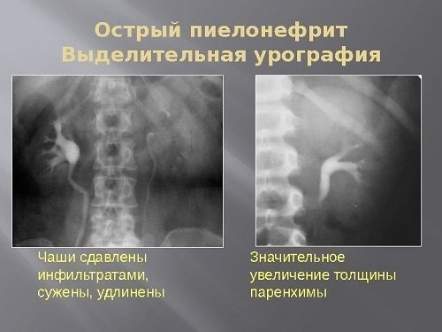 Острый пиелонефрит рентген