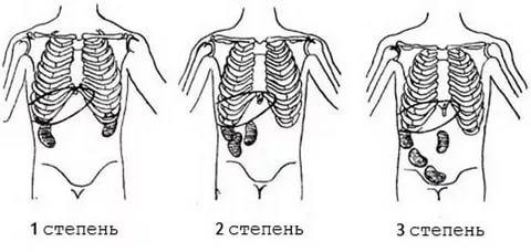 стадии нефроптоза