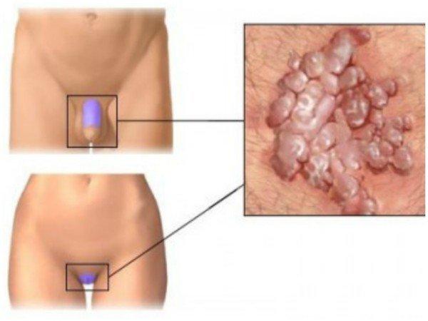 Причины появления папиллом на теле и как их вывести