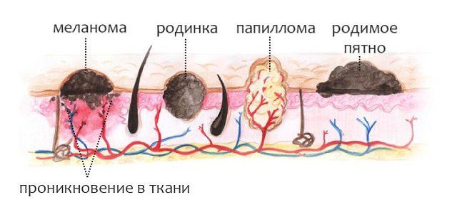 Различные кожные наросты