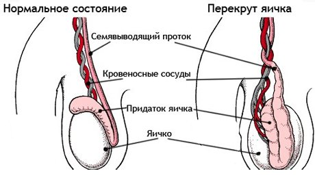 развитие патологии