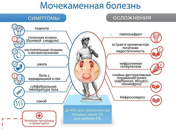 особенности мочекаменной болезни у мужчин