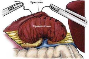 Нефропексия