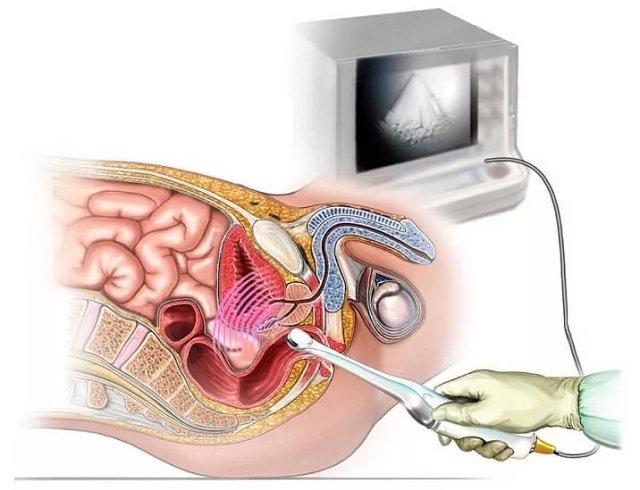 ультразвук для диагностирования импотенции