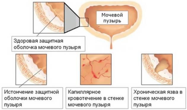 проникновение микробов