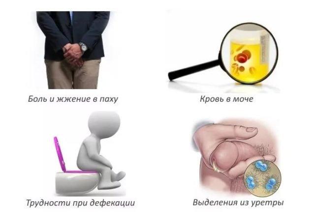 Как лечится простатита у мужчин